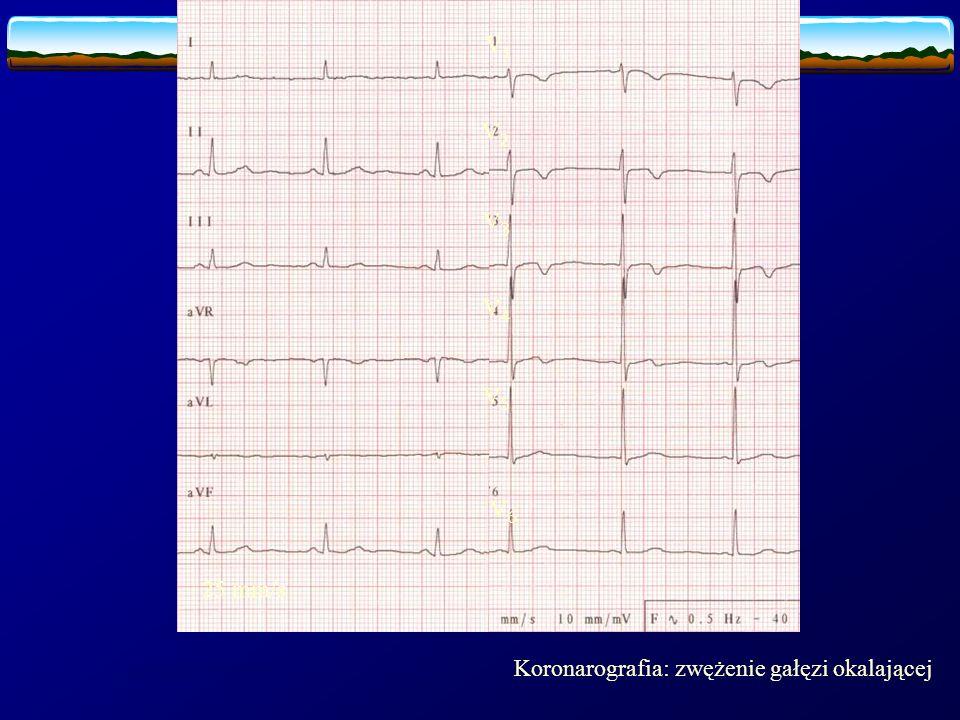 V1 V2 V3 V4 V5 V6 25 mm/s Ujemne załamki T V1-V3, +/- V4 Koronarografia: zwężenie gałęzi okalającej