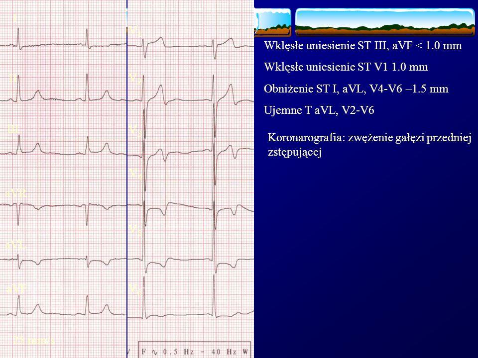 I V1. Wklęsłe uniesienie ST III, aVF < 1.0 mm. Wklęsłe uniesienie ST V1 1.0 mm. Obniżenie ST I, aVL, V4-V6 –1.5 mm.