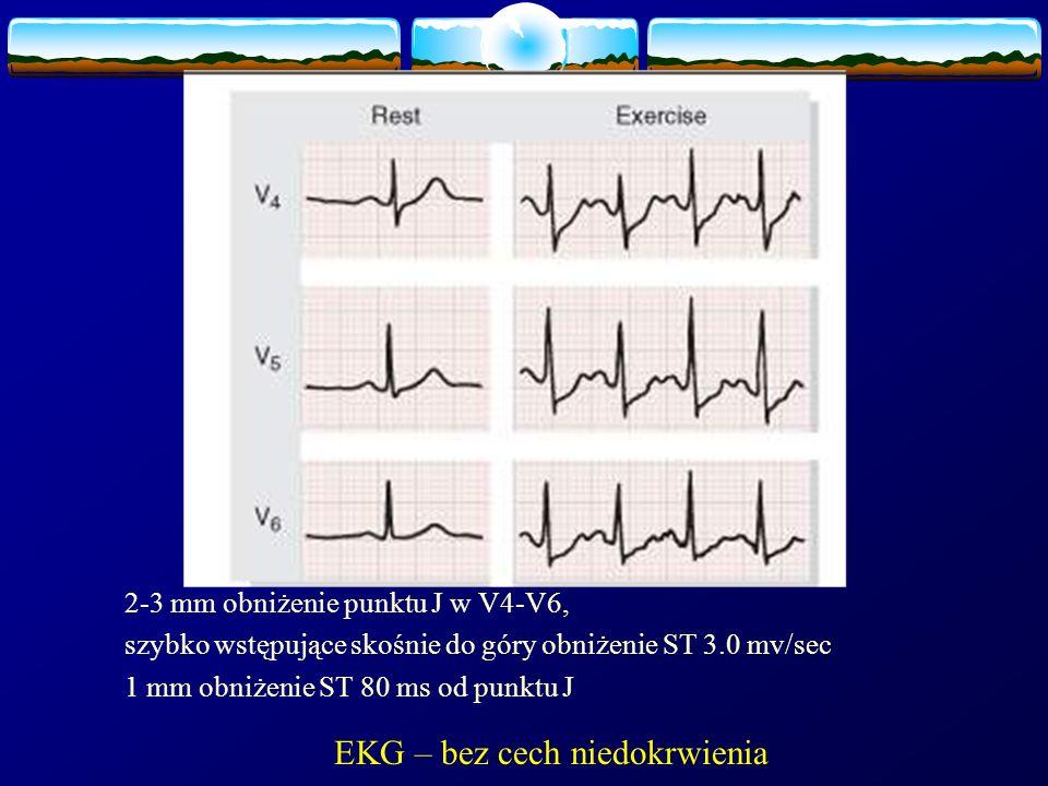 EKG – bez cech niedokrwienia