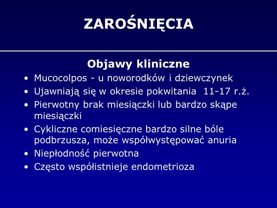 ZAROŚNIĘCIA Objawy kliniczne Mucocolpos - u noworodków i dziewczynek