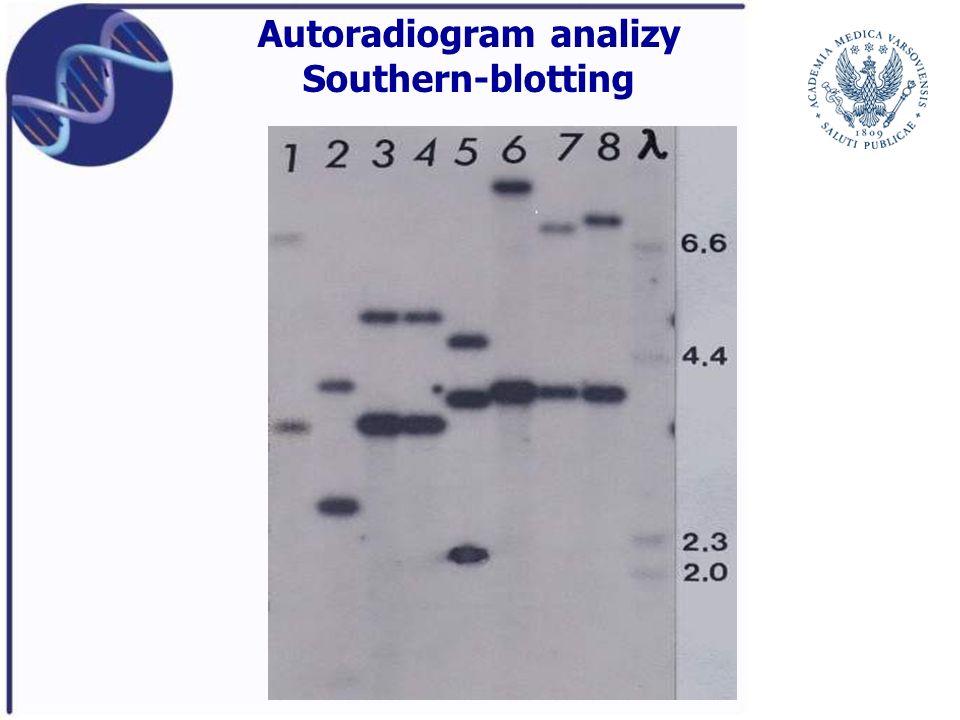 Autoradiogram analizy Southern-blotting