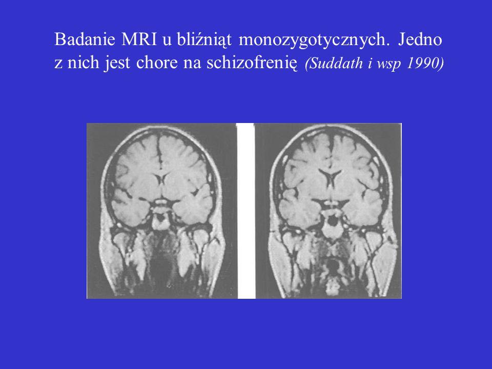 Badanie MRI u bliźniąt monozygotycznych