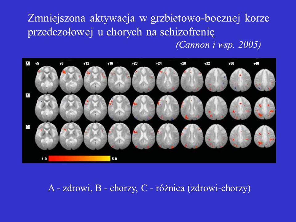 Zmniejszona aktywacja w grzbietowo-bocznej korze przedczołowej u chorych na schizofrenię (Cannon i wsp. 2005)
