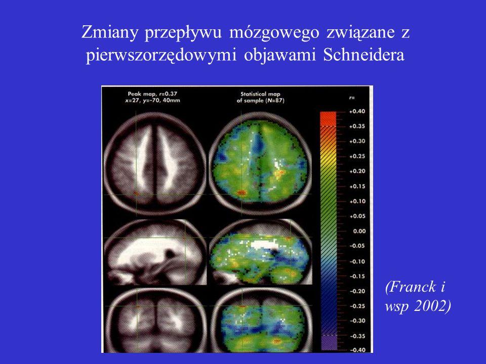Zmiany przepływu mózgowego związane z pierwszorzędowymi objawami Schneidera