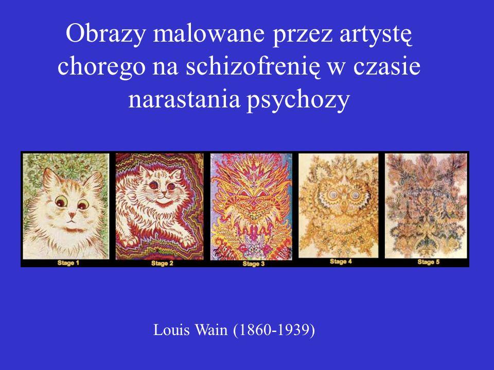 Obrazy malowane przez artystę chorego na schizofrenię w czasie narastania psychozy