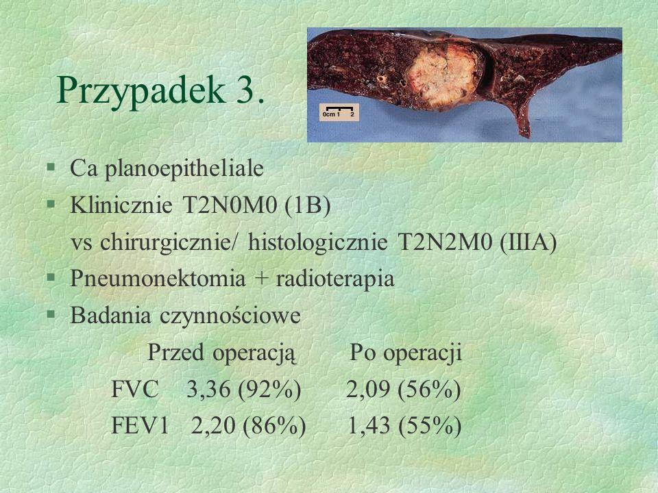 Przypadek 3. Ca planoepitheliale Klinicznie T2N0M0 (1B)
