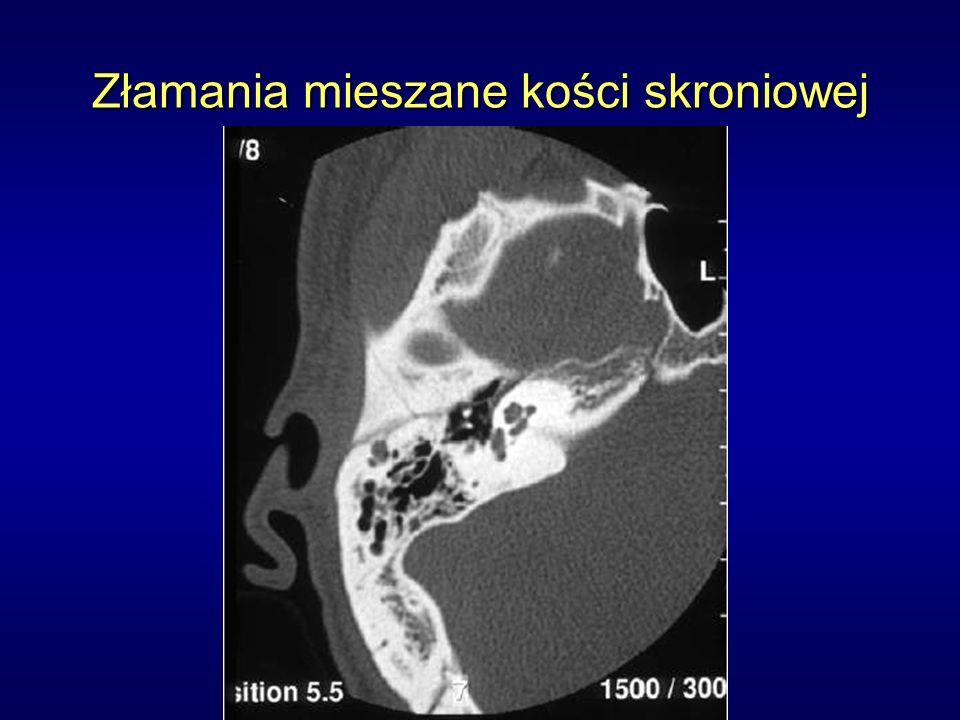 Złamania mieszane kości skroniowej