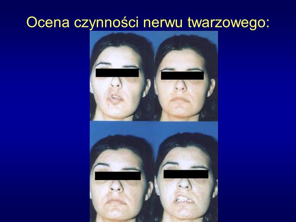 Ocena czynności nerwu twarzowego: