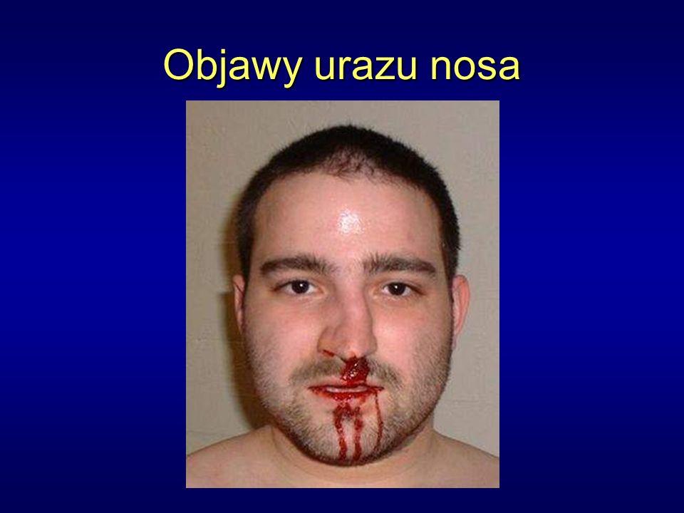 Objawy urazu nosa