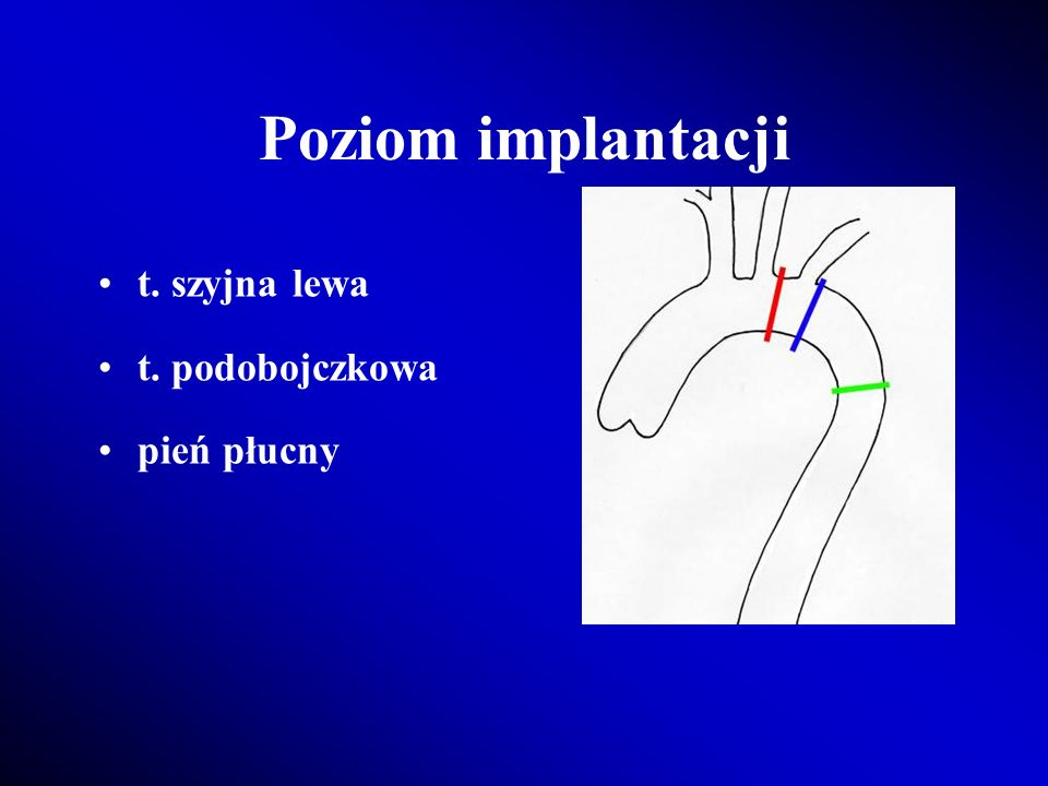 Poziom implantacji t. szyjna lewa t. podobojczkowa pień płucny