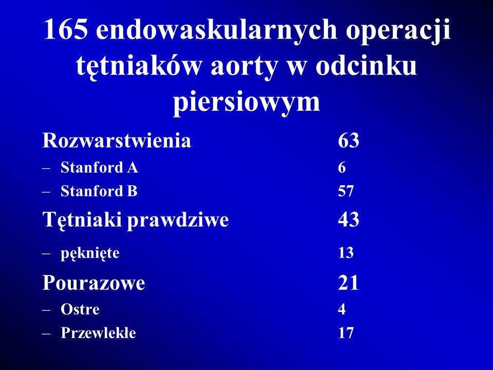 165 endowaskularnych operacji tętniaków aorty w odcinku piersiowym