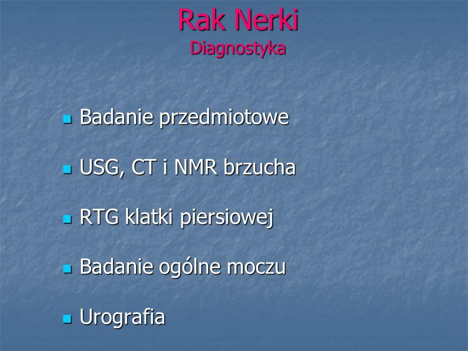 Rak Nerki Diagnostyka Badanie przedmiotowe USG, CT i NMR brzucha