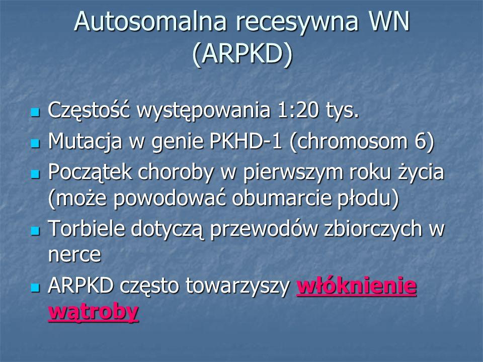 Autosomalna recesywna WN (ARPKD)