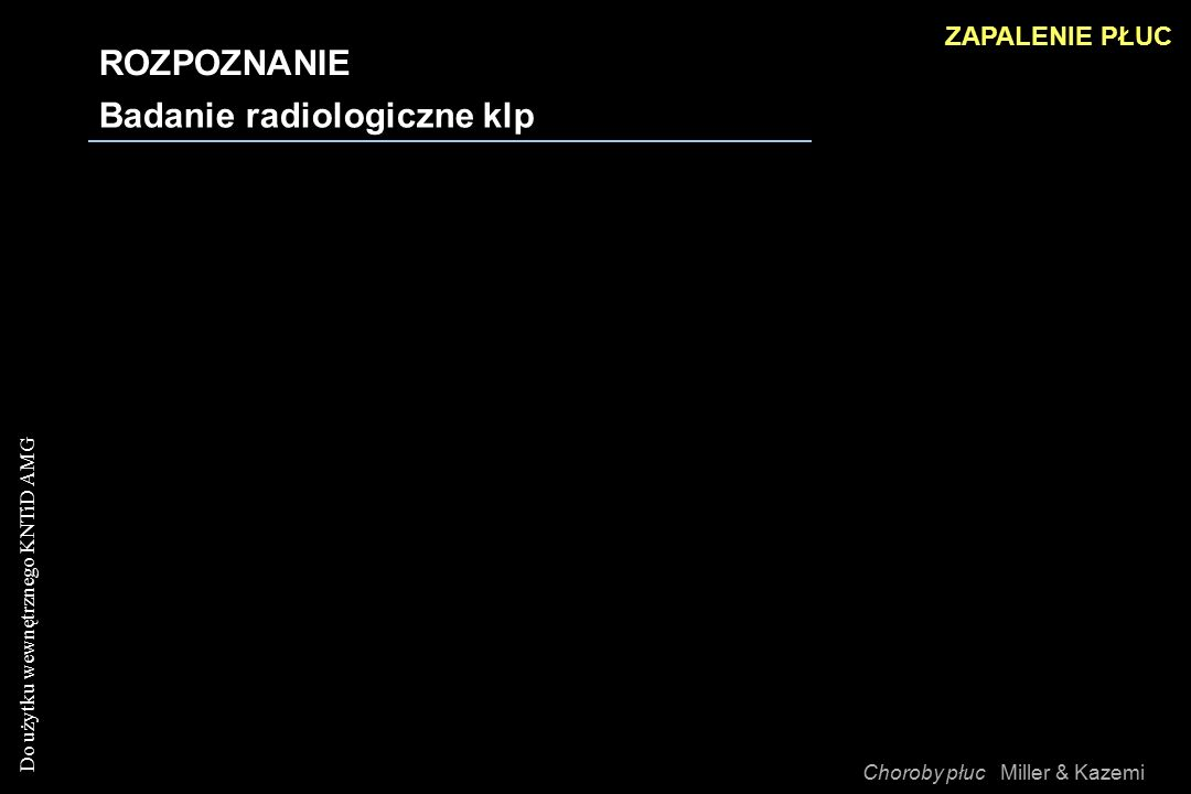 Badanie radiologiczne klp