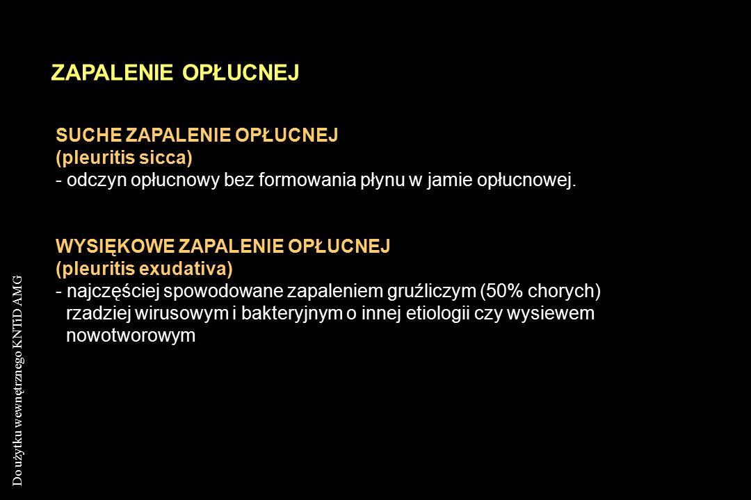 ZAPALENIE OPŁUCNEJ SUCHE ZAPALENIE OPŁUCNEJ (pleuritis sicca)