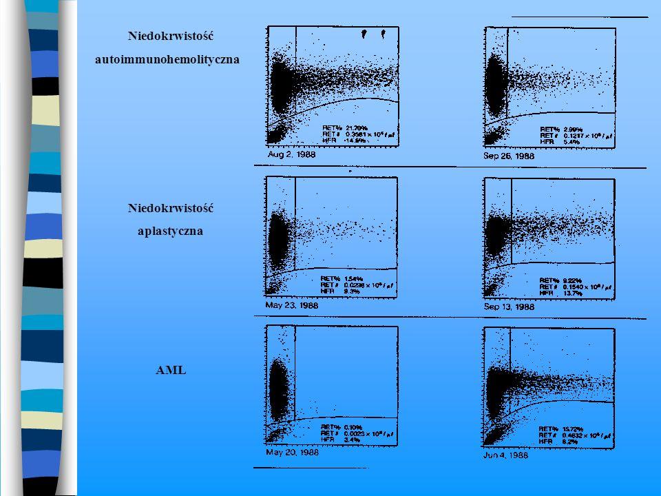 Niedokrwistość autoimmunohemolityczna aplastyczna AML
