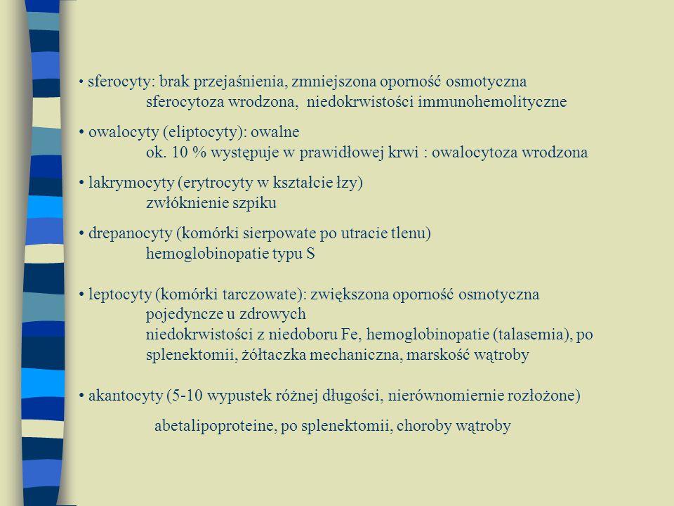 lakrymocyty (erytrocyty w kształcie łzy) zwłóknienie szpiku