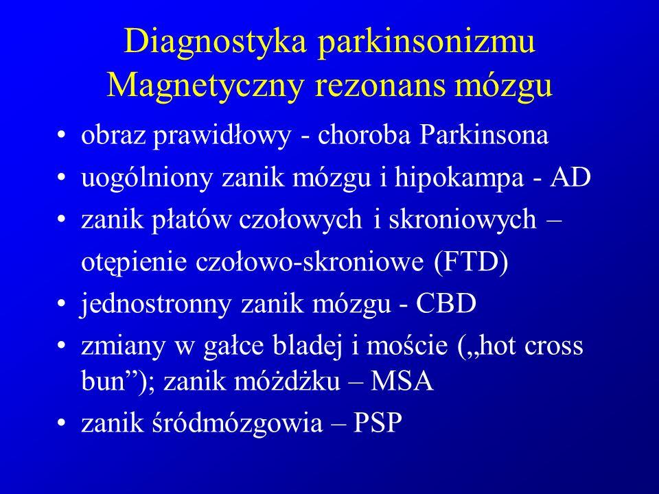 Diagnostyka parkinsonizmu Magnetyczny rezonans mózgu