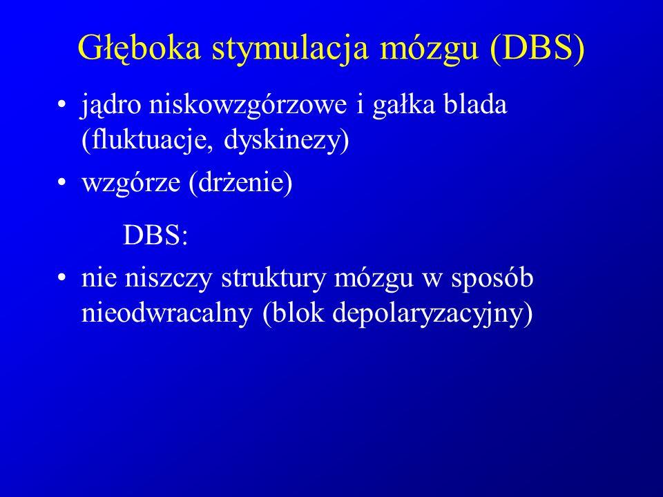 Głęboka stymulacja mózgu (DBS)