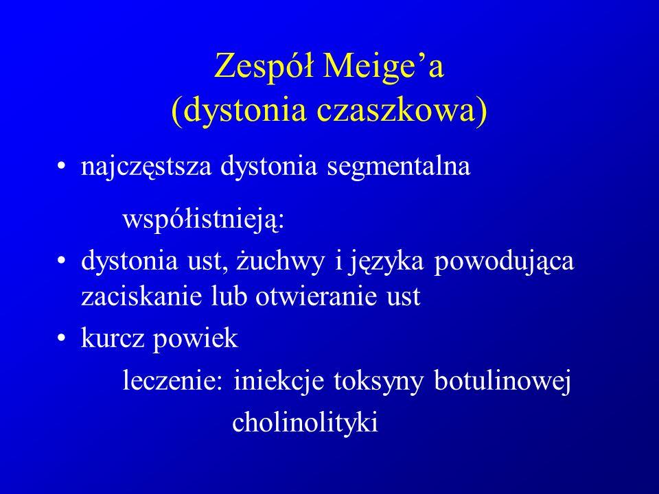 Zespół Meige'a (dystonia czaszkowa)