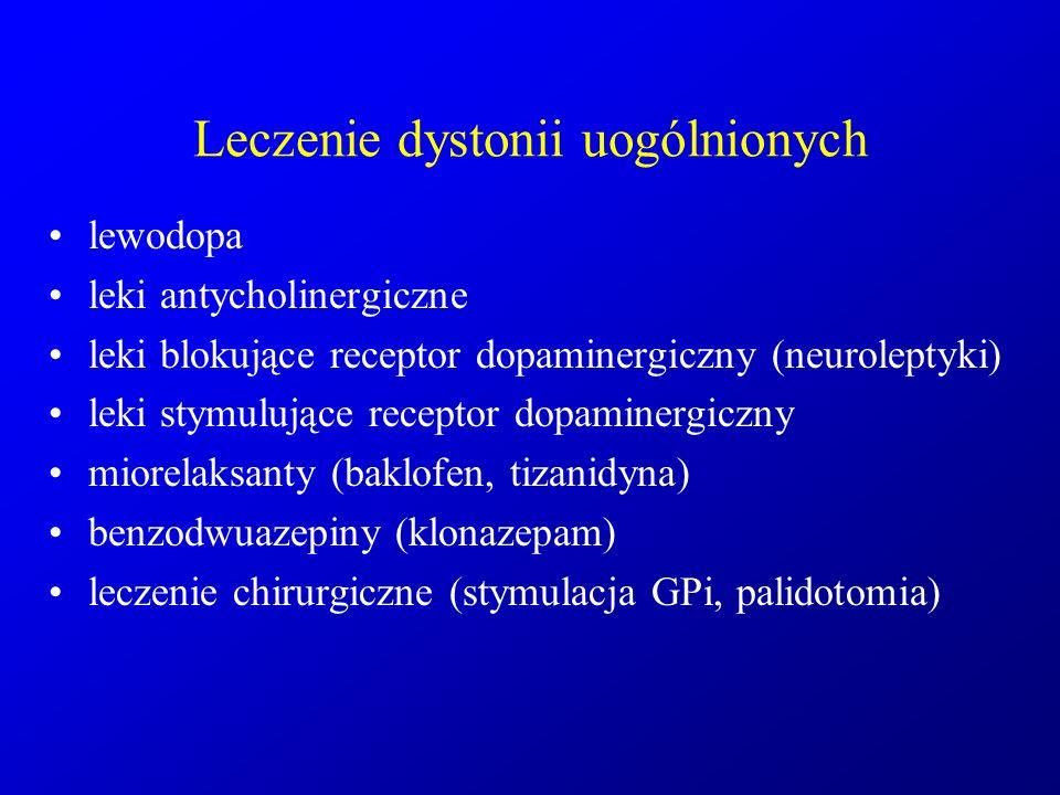 Leczenie dystonii uogólnionych