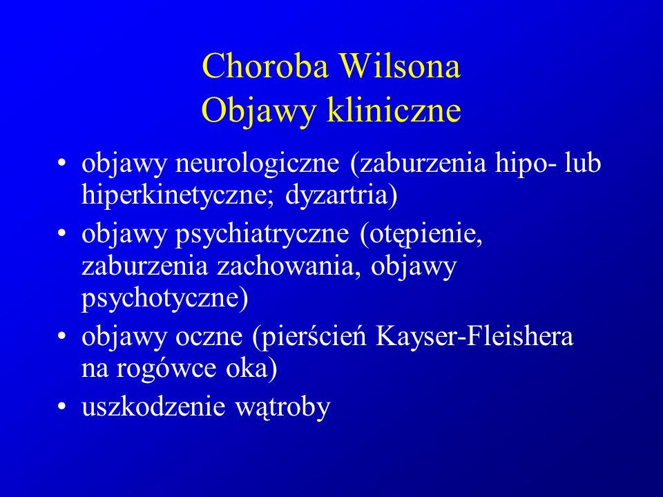 Choroba Wilsona Objawy kliniczne