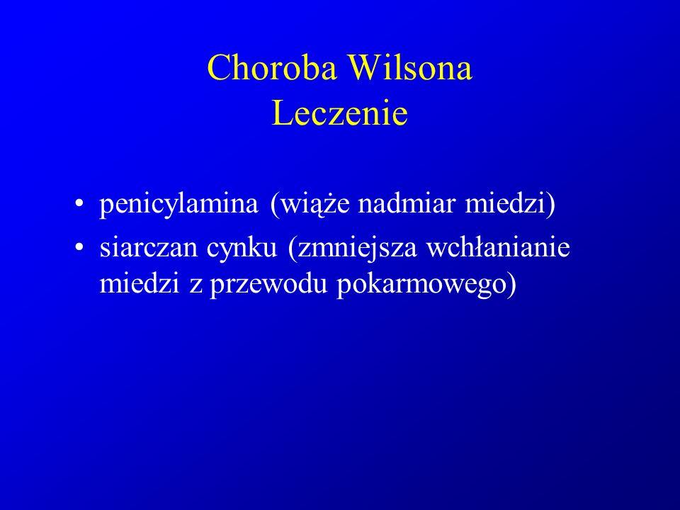 Choroba Wilsona Leczenie