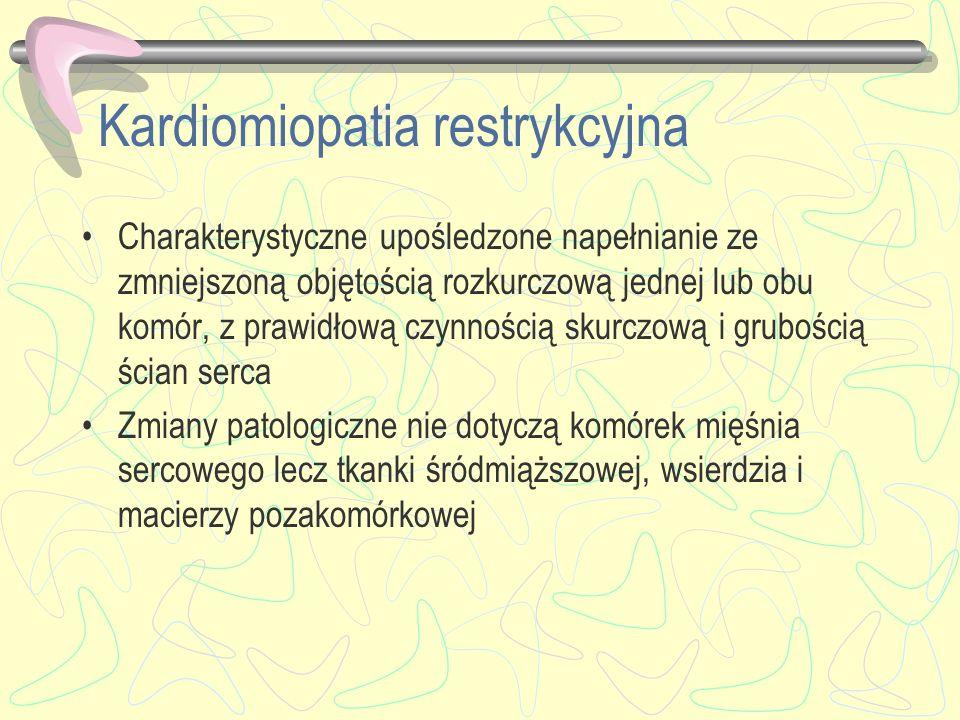 Kardiomiopatia restrykcyjna