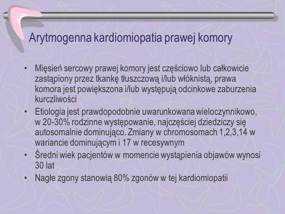 Arytmogenna kardiomiopatia prawej komory