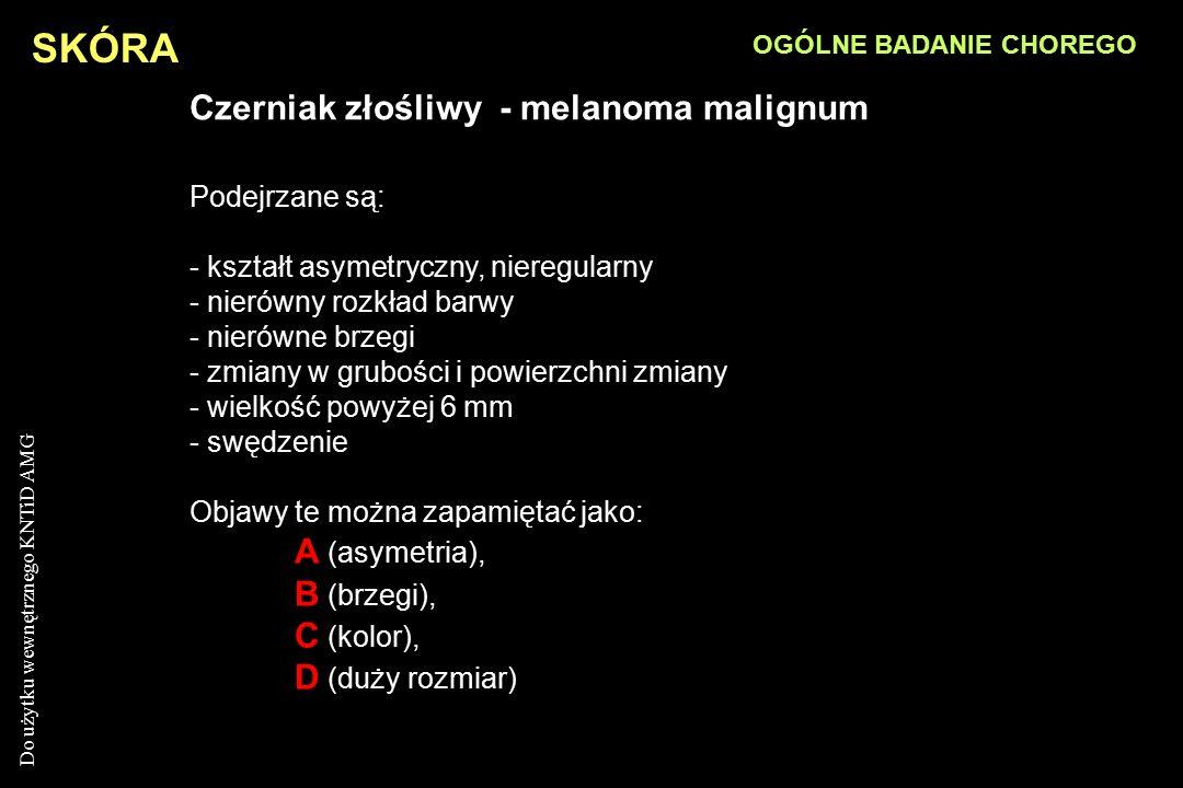 Czerniak złośliwy - melanoma malignum