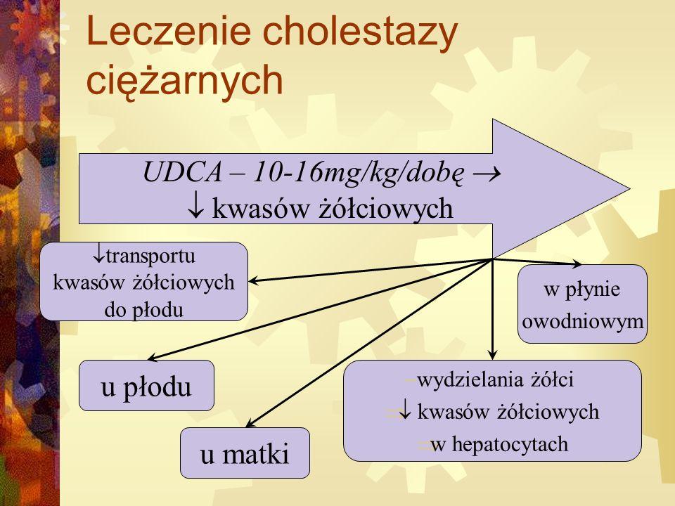 Leczenie cholestazy ciężarnych