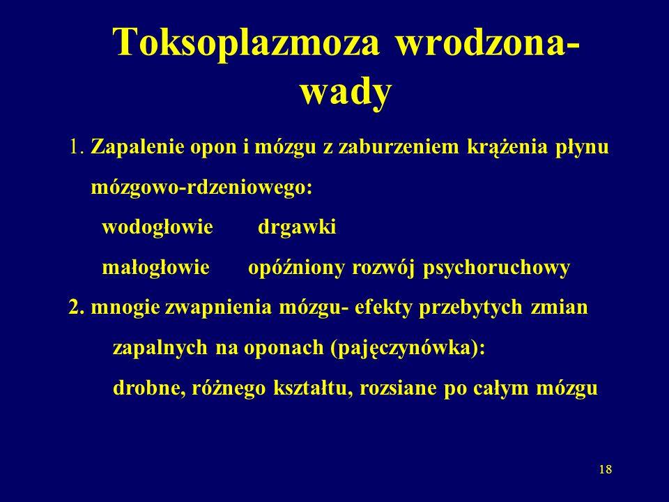 Toksoplazmoza wrodzona-wady