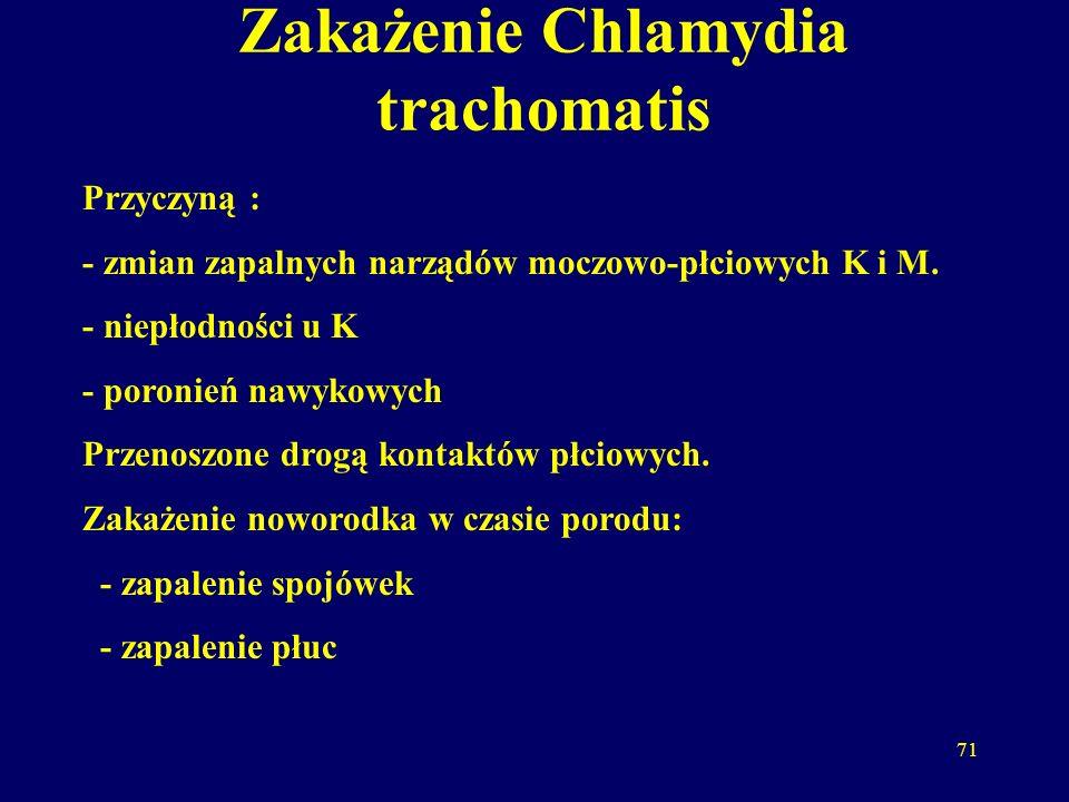 Zakażenie Chlamydia trachomatis