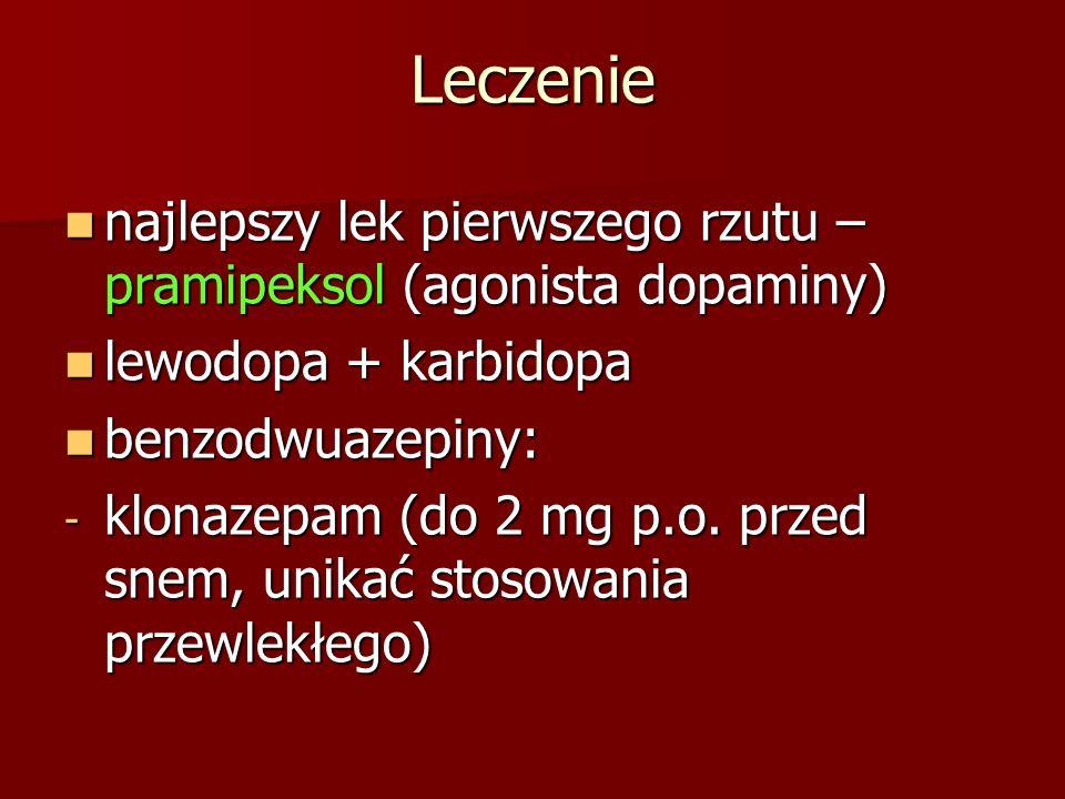 Leczenie najlepszy lek pierwszego rzutu – pramipeksol (agonista dopaminy) lewodopa + karbidopa. benzodwuazepiny: