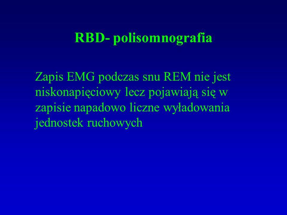 RBD- polisomnografia Zapis EMG podczas snu REM nie jest niskonapięciowy lecz pojawiają się w zapisie napadowo liczne wyładowania jednostek ruchowych.