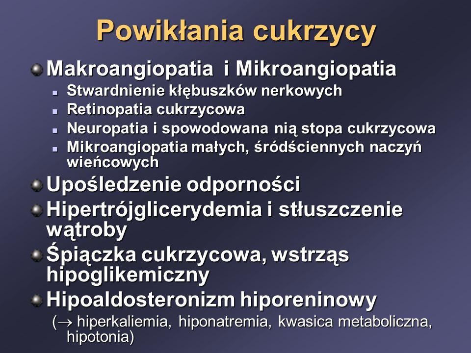 Powikłania cukrzycy Makroangiopatia i Mikroangiopatia