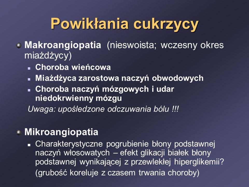 Powikłania cukrzycy Makroangiopatia (nieswoista; wczesny okres miażdżycy) Choroba wieńcowa. Miażdżyca zarostowa naczyń obwodowych.