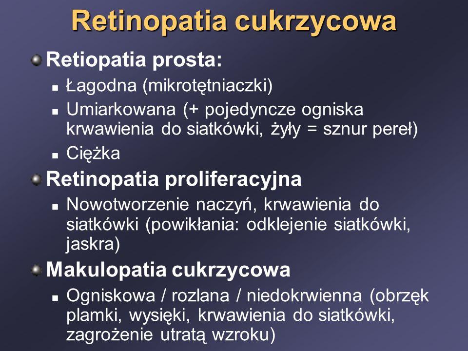 Retinopatia cukrzycowa