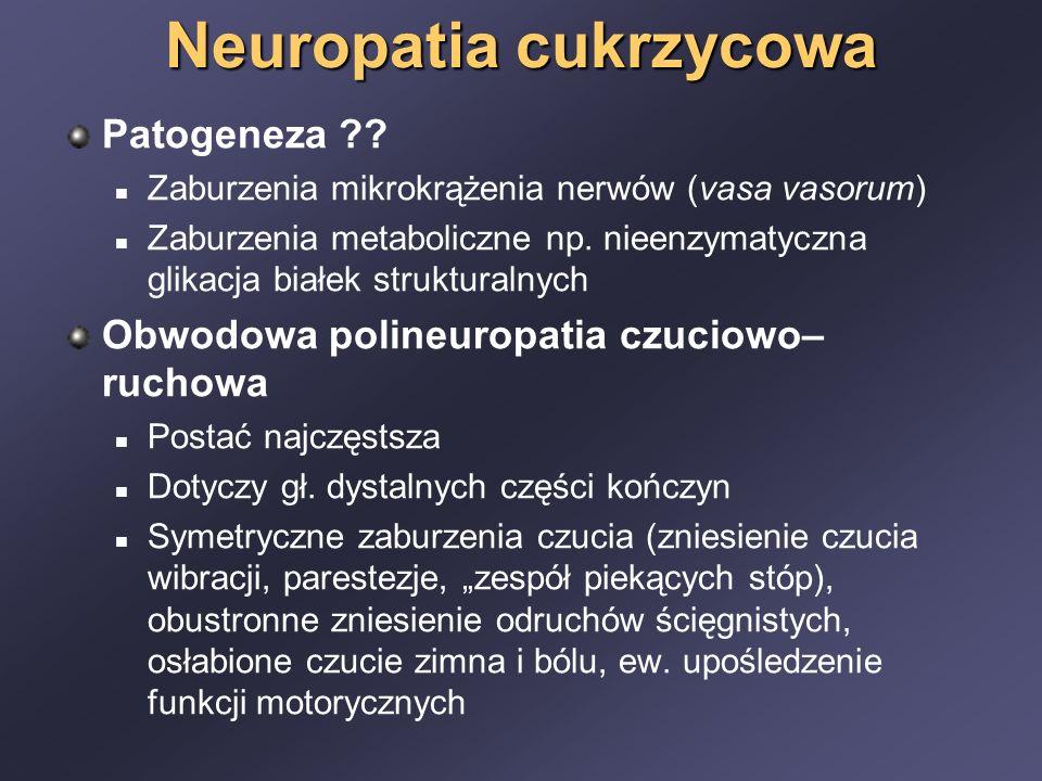 Neuropatia cukrzycowa