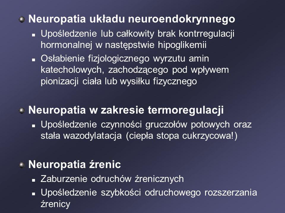Neuropatia układu neuroendokrynnego