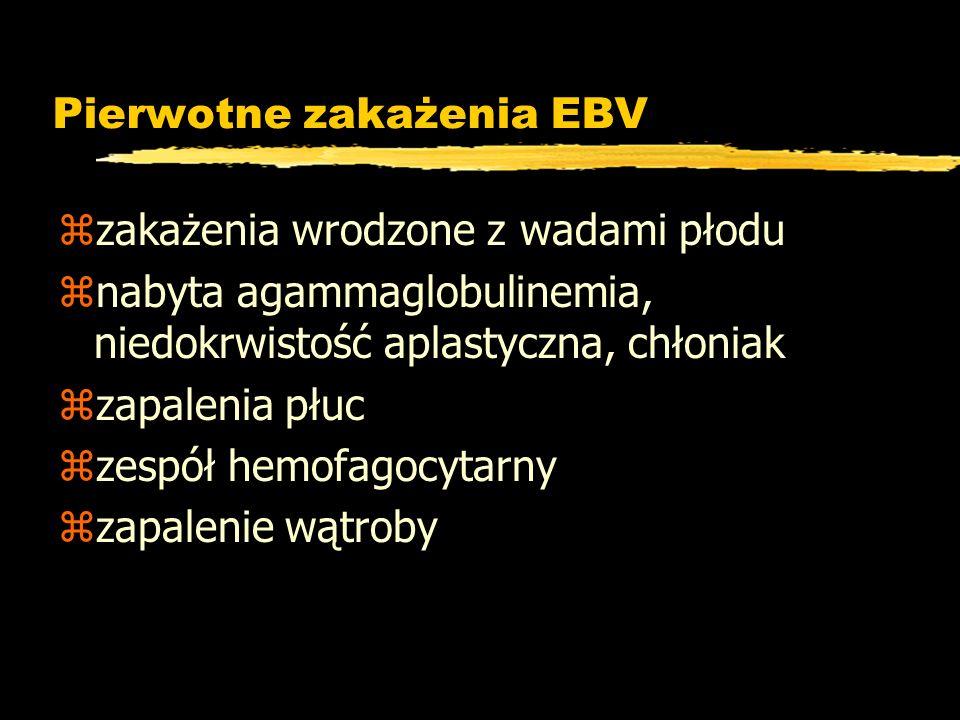 Pierwotne zakażenia EBV
