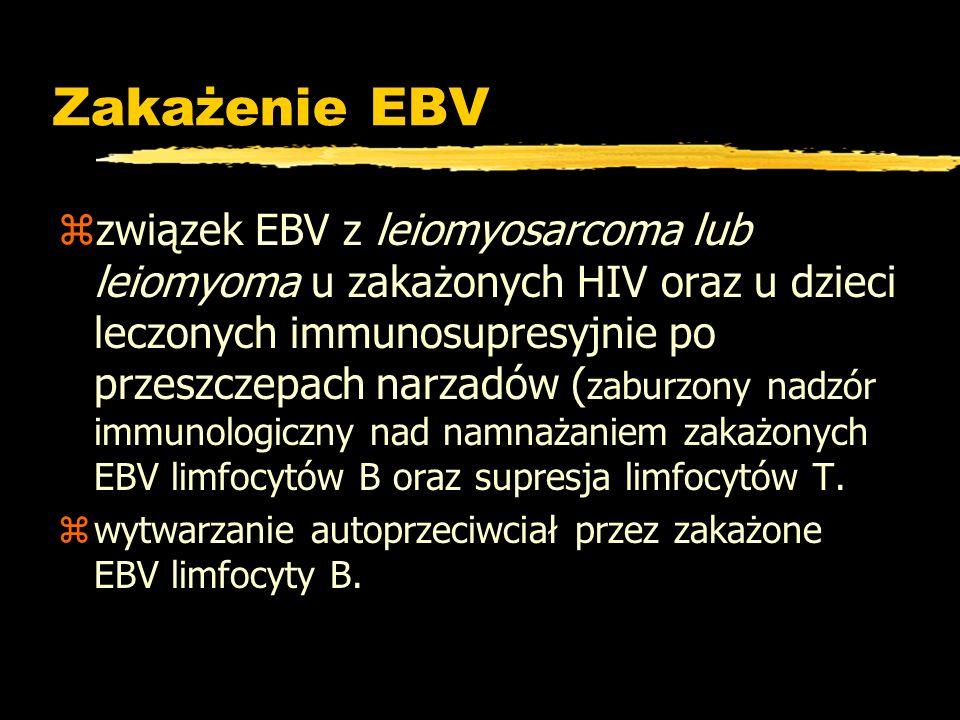 Zakażenie EBV