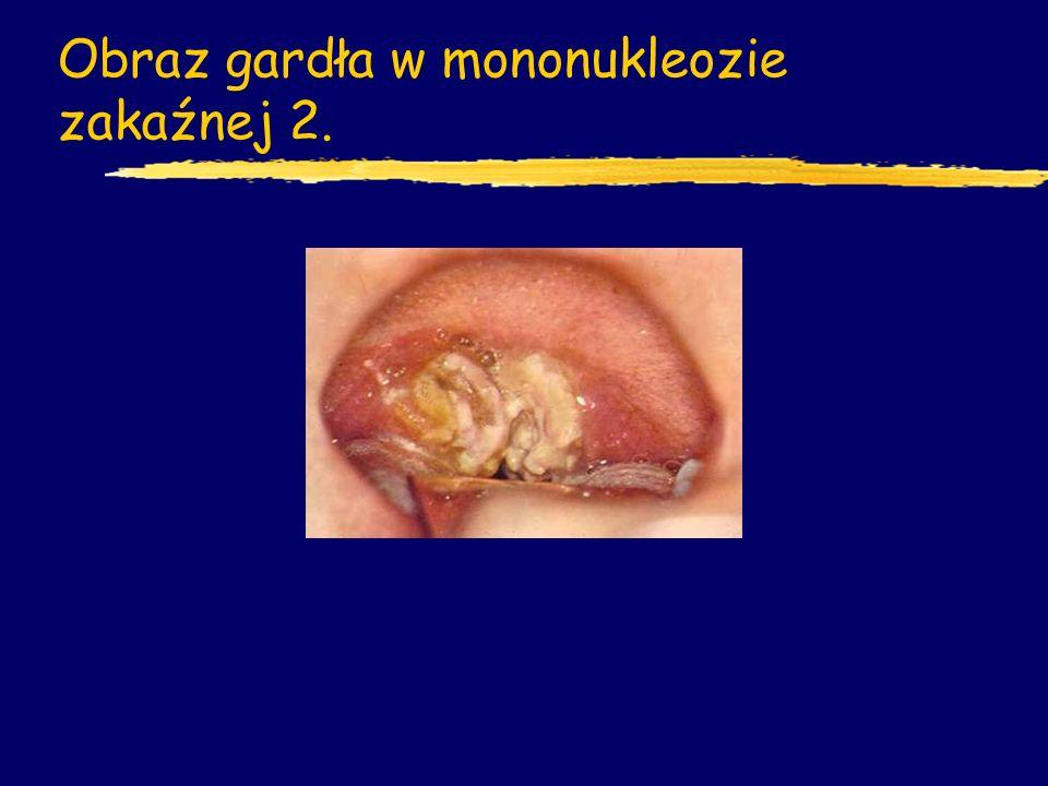 Obraz gardła w mononukleozie zakaźnej 2.
