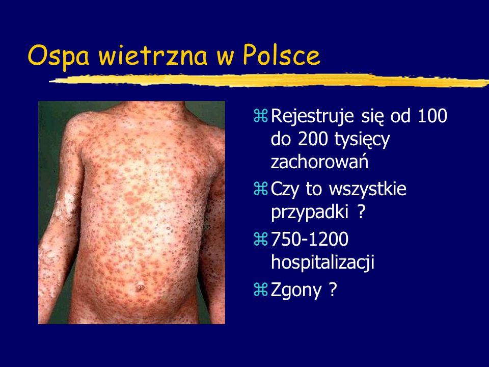 Ospa wietrzna w Polsce Rejestruje się od 100 do 200 tysięcy zachorowań