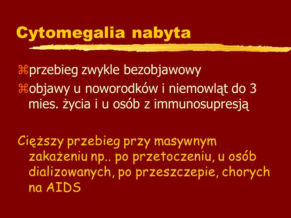 Cytomegalia nabyta przebieg zwykle bezobjawowy