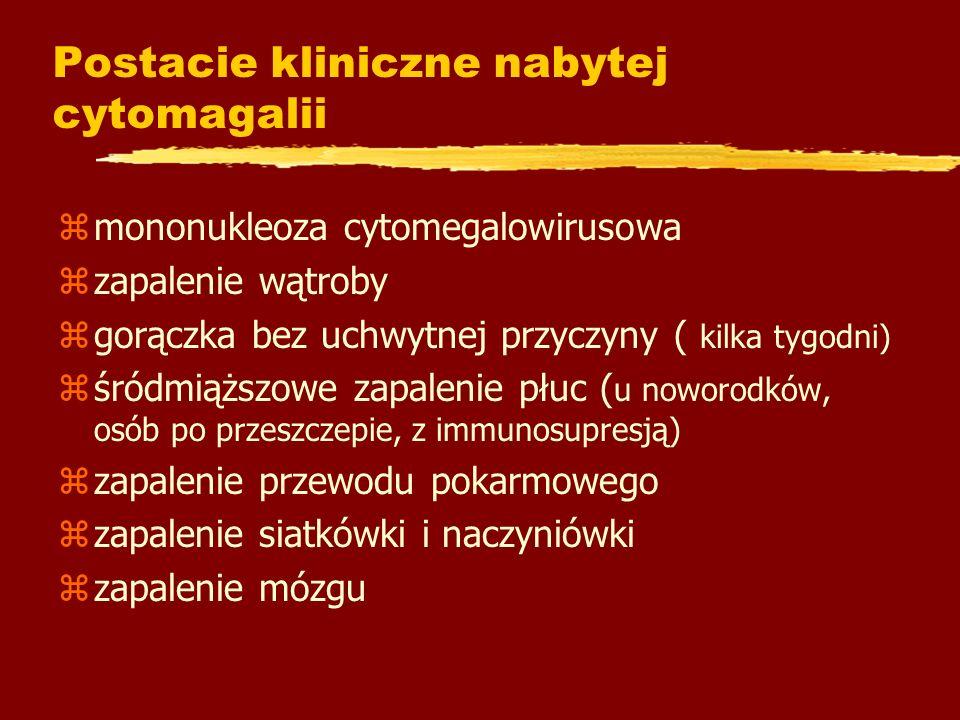 Postacie kliniczne nabytej cytomagalii