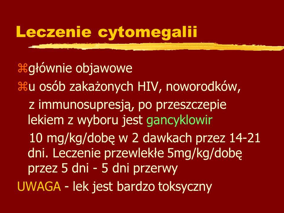 Leczenie cytomegalii głównie objawowe