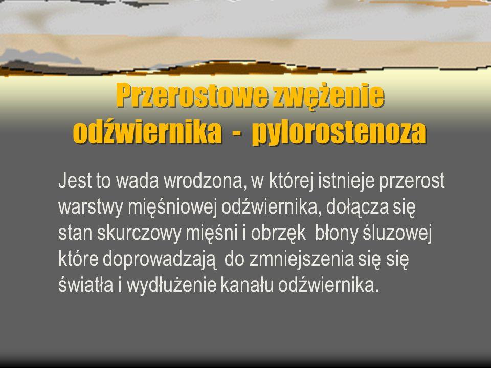 Przerostowe zwężenie odźwiernika - pylorostenoza