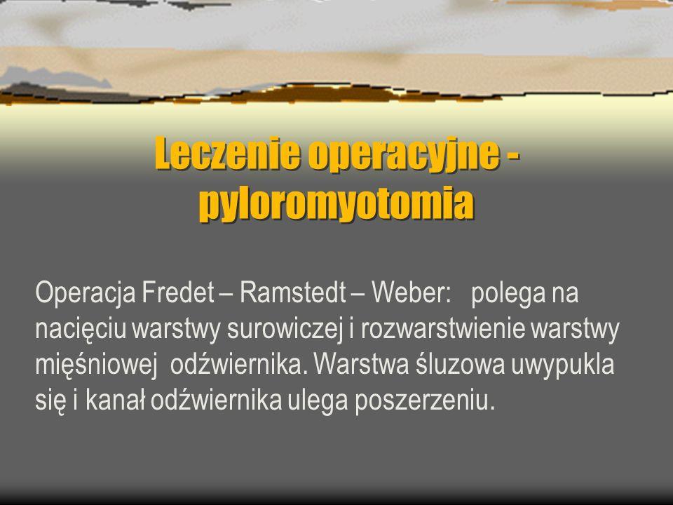 Leczenie operacyjne -pyloromyotomia