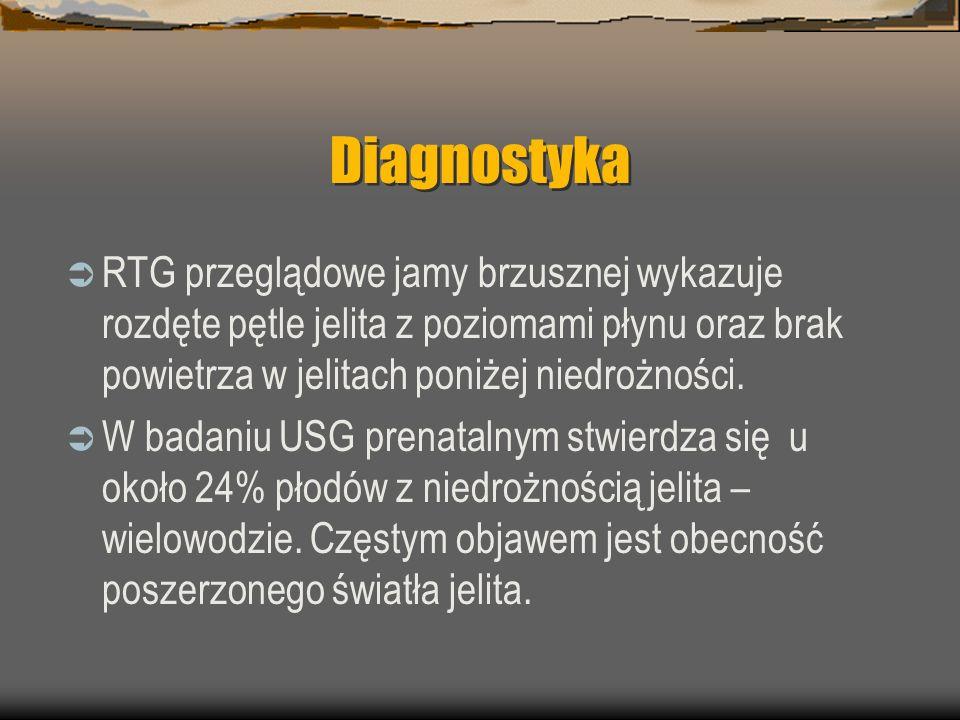 Diagnostyka RTG przeglądowe jamy brzusznej wykazuje rozdęte pętle jelita z poziomami płynu oraz brak powietrza w jelitach poniżej niedrożności.